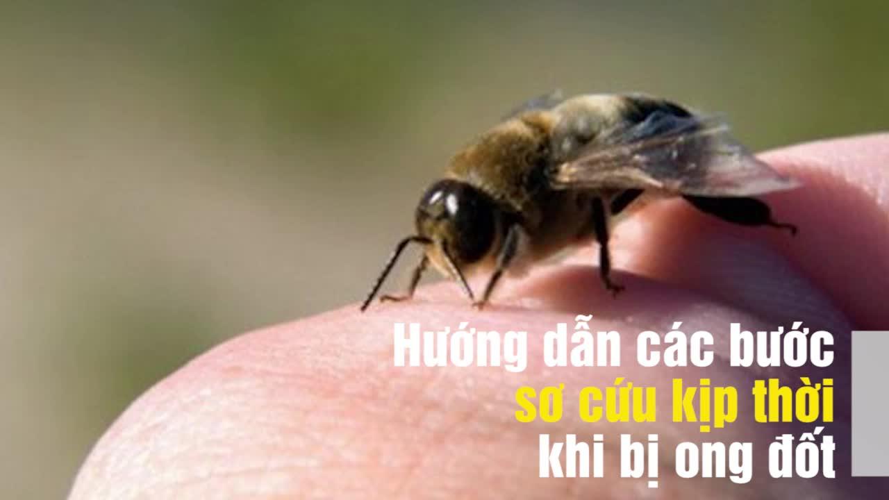 Cần sơ cứu ngay khi bị ong đốt