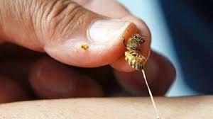 Cách chữa ong đốt không đau, không cần dùng thuốc